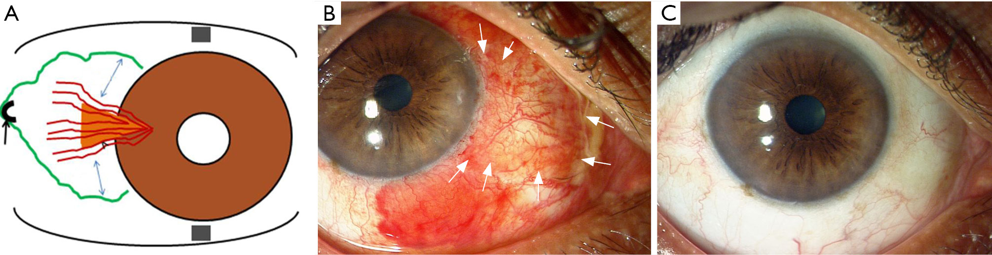 Patch graft for pterygium surgery: stitch it or stick it