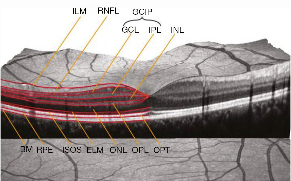 The role of optical coherence tomography in neuro-ophthalmology